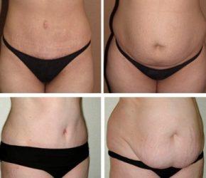 как убрать обвисший низ живота после похудения